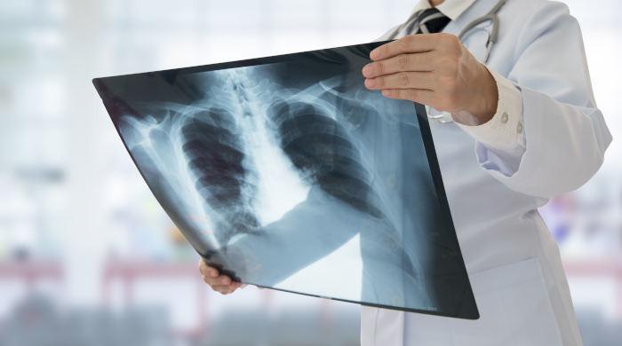 Lekarz radiolog analizujący zdjęcie rentgenowskie żeber