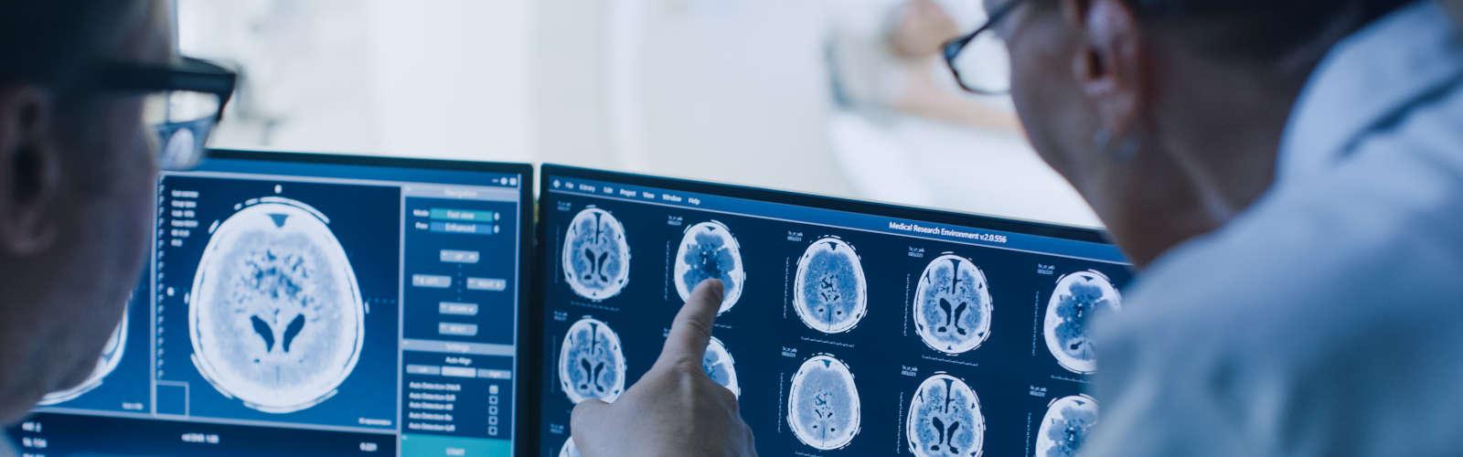 Dwóch lekarzy przeglądających na ekranie komputera wyniki badania tomografii komputerowej mózgu